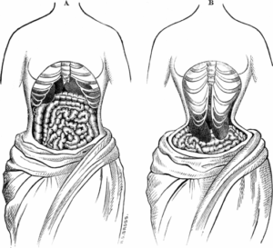 waist trainer dangers